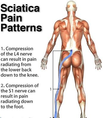 sciatica pain patterns